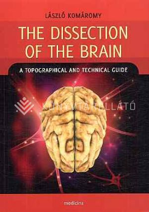 Kép: The dissection of the brain